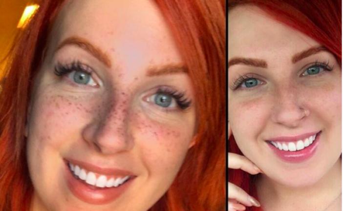 Tatuarse pecas en el rostro, la nueva moda de belleza