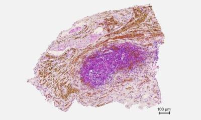 Un nuevo tratamiento contra el cáncer de páncreas estimula las defensas y frena el crecimiento tumoral en ratones