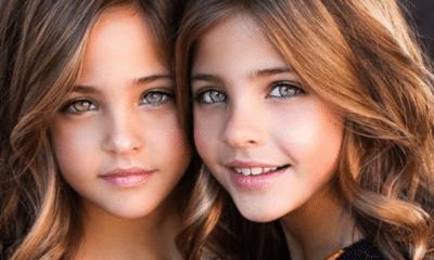 gemelas más bellas del mundo